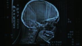 Incandescência e varredura brilhante de MRI vídeos de arquivo