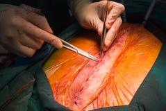 Incisión cercana del esternón de la sutura imágenes de archivo libres de regalías