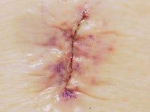 Incisión de la cirugía lumbar de Laminenectomy cubierta con Derma-BO fotografía de archivo libre de regalías