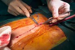 Incisión sternotomy cercana de la sutura fotografía de archivo