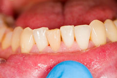 Incisors as Subject of Dental Photography Stock Photos