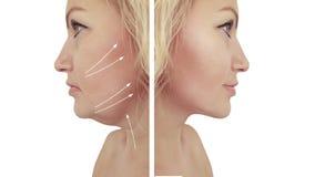 Incurvatura del doppio mento della donna che solleva prima e dopo le procedure fotografie stock libere da diritti