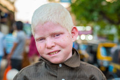 Indian albino boy in Mangalore Royalty Free Stock Photography