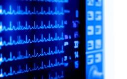 Indicadores médicos del monitor de la actividad cardiaca Imágenes de archivo libres de regalías