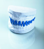 Individual dental molds to make trays Stock Photos