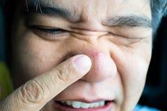 Individuo asiático que lleva el dedo índice las espinillas grandes de la espinilla y de la espinilla y las cicatrices del acné en imagenes de archivo