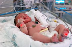 Infant in NICU stock photo