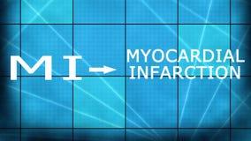 Infarctus du myocarde MI de crise cardiaque illustration stock