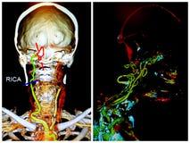 Infarto agudo del rmca ct del examen neuro del cuello de Angio Fotografía de archivo