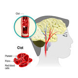 Infarto cerebrale illustrazione vettoriale