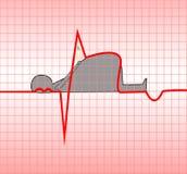 Infarto del miocardio Imagenes de archivo