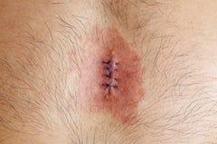 Infecção da ferida Imagens de Stock Royalty Free
