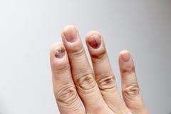 Infecção do fungo em pregos mão, dedo com onychomycosis - foco macio fotografia de stock