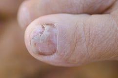 Infecção do fungo na unha do pé fotos de stock