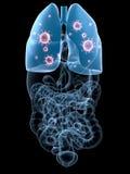 Infecção do pulmão Fotos de Stock Royalty Free