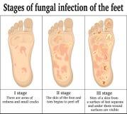 Infecção fungosa nos pés ilustração royalty free
