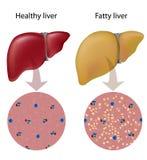 Infecção hepática gorda Fotos de Stock Royalty Free