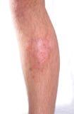 Infección de la piel Fotografía de archivo libre de regalías