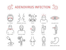 Infección del adenovirus Vector Imagen de archivo libre de regalías