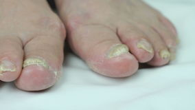 Infección fungosa en las uñas del pie del pie de la hembra almacen de metraje de vídeo