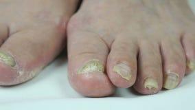 Infección fungosa en las uñas del pie del pie femenino del ` s almacen de metraje de vídeo