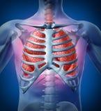 Infección humana del pulmón Imagen de archivo libre de regalías
