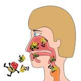 Infecciones respiratorias Imagen de archivo libre de regalías