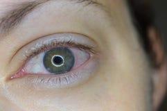 Infected Eye. Bloodshot infected left eye stock images