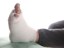 Infected foot of diabetic Stock Images