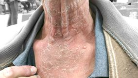 The infected skin begins to peel off. Neck. The infected skin begins to peel off. Fungal infections. Neck Stock Images