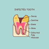 Infected tooth concept Royalty Free Stock Photo