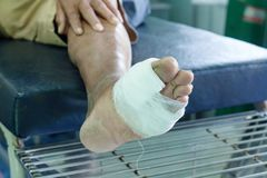 Infected wound of diabetic foot. Infected wound of diabetic patient foot Royalty Free Stock Image