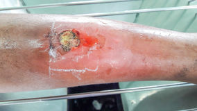 Infected wound of leg Stock Image