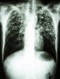 Infection de bacille de la tuberculose (tuberculose pulmonaire) images libres de droits