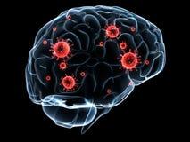 Infection de cerveau illustration de vecteur