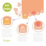 Infection de champignon de clou Image libre de droits