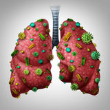 Infection de pneumonie illustration stock