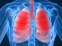 Infection de poumon Images stock