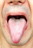 Infection tongue Royalty Free Stock Photos