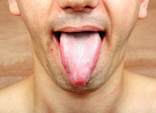 Infection tongue Royalty Free Stock Photo