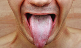 Infection tongue Stock Photography