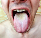 Infection tongue Royalty Free Stock Images