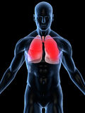 infekci płuco Zdjęcie Royalty Free