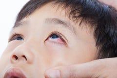 Infektion för Closeuppinkeye (bindhinneinflammation) royaltyfri foto