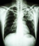 Infektion för Mycobacteriumtuberkulos (den lung- tuberkulons) arkivbild