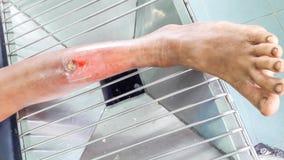Infekująca rana noga obraz stock
