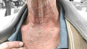 Infekująca skóra zaczyna strugać daleko szyja obrazy stock