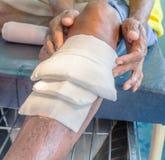 Infekująca zdyszana noga fotografia stock