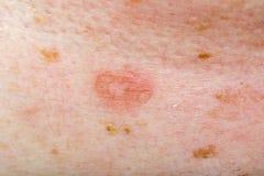 Infezione del candida su pelle umana Fotografia Stock Libera da Diritti