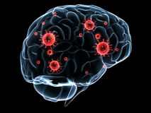 Infezione del cervello illustrazione vettoriale